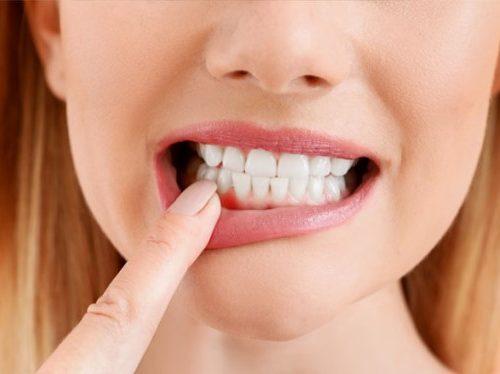 gingiva treatment